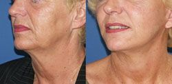 lifting cervico facial 93,lifting cervico facial seine saint denis