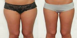 chirurgien esthetique cuisse,ventre 94,anches 94,liposuccion complete 94,culotte de cheval 94