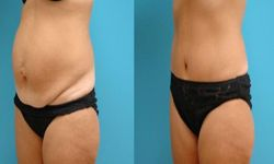 lifting ventre,abdominoplastie
