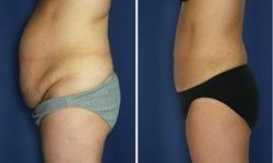 abdominoplastie prix paris 9,abdominoplastie paris 9